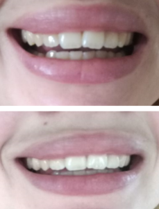 Virker AP24 tandpasta?