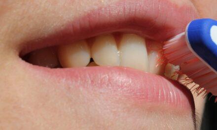 Et flottere smil med tandblegning
