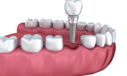 Miniguide: Indhent priser på tandimplantater